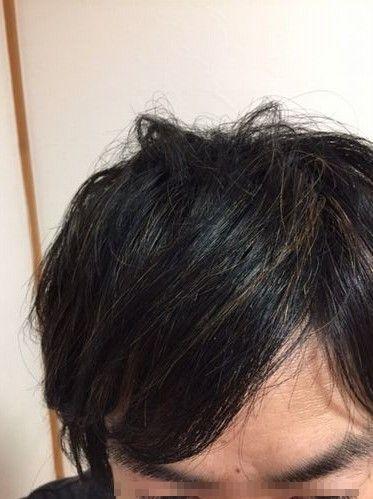 素髪の様子 2018年5月