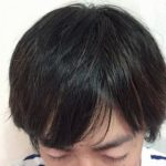 現在の髪の状態