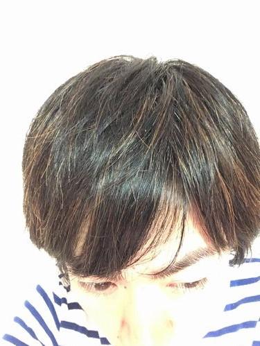 現在の髪の状態2