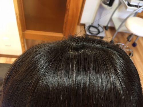 香草カラー 施術前2