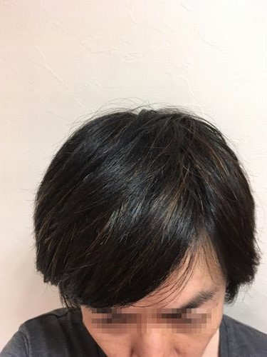 湯シャン生活1年8か月目の髪の状態2