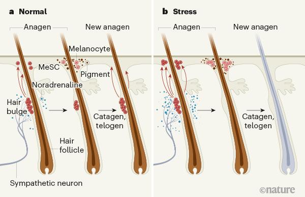 ストレスによる白髪のメカニズム