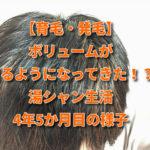 【育毛・発毛】ボリュームが出るようになってきた!?湯シャン生活4年5か月目の様子