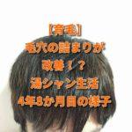 【育毛】毛穴の詰まりが改善!? 湯シャン生活4年8か月目の様子